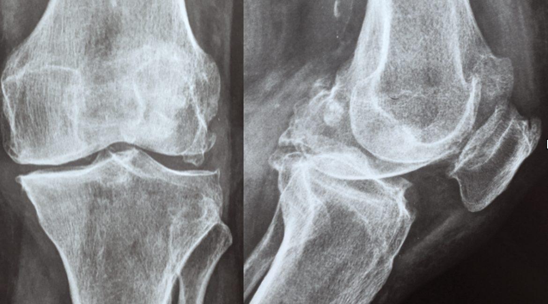 Τι είναι η αρθρίτιδα του γόνατος;