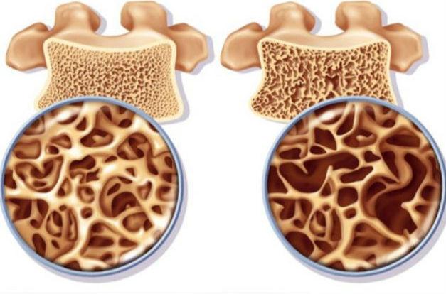 Οστεοπόρωση: Αίτια, συμπτώματα και αντιμετώπιση